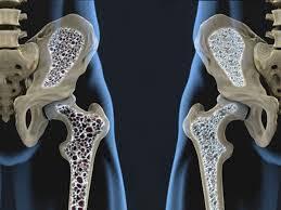 تحقیق پوکی استخوان