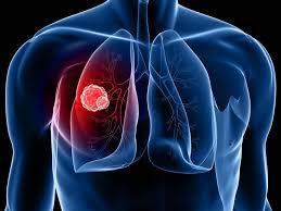 تحقیق سرطان ریه
