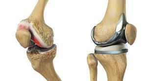 تحقیق بررسي عوامل آناتوميك اختلالات مفصل زانو و درمان آنها