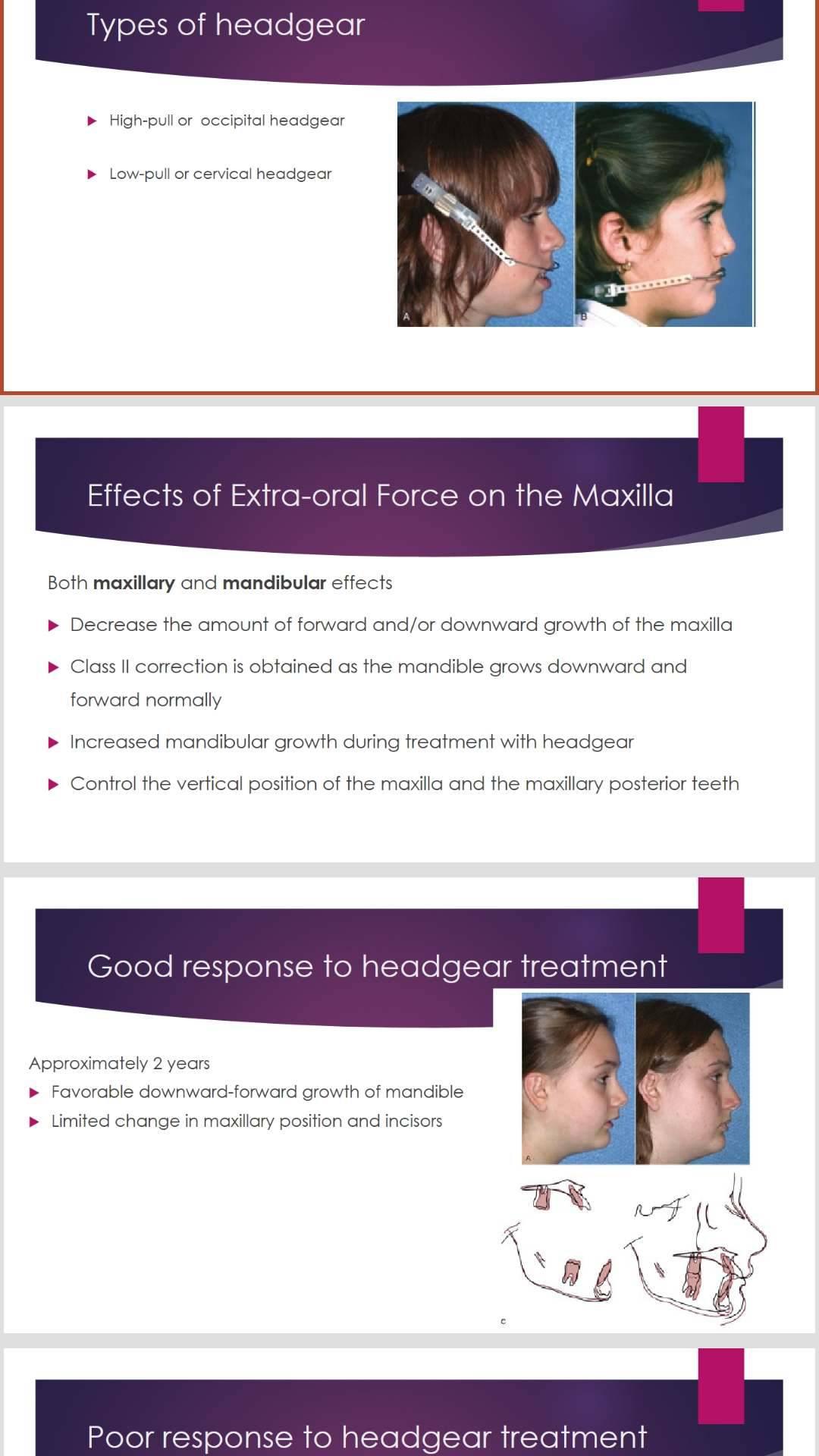 پاورپوینت انگلیسی extra oral force headgear