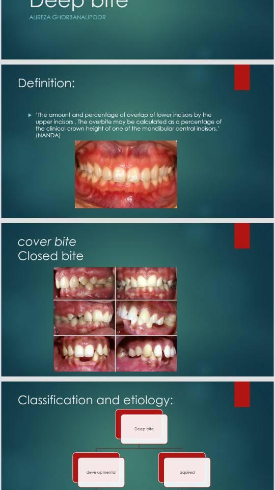 پاورپوینت انگلیسی دندانپزشکی deep bite