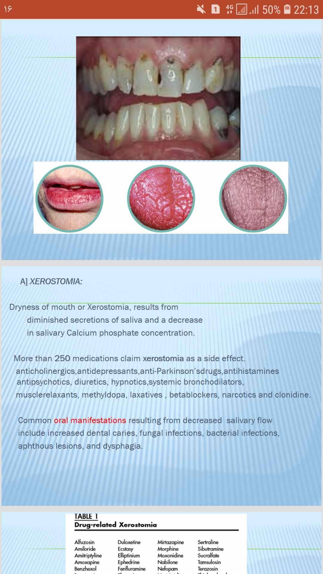پاورپوینت انگلیسی دندانپزشکی اثرات داروها محوطه دهانی