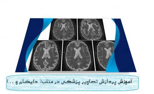 فیلم های آموزشی پردازش تصاویر پزشکی در نرم افزار متلب