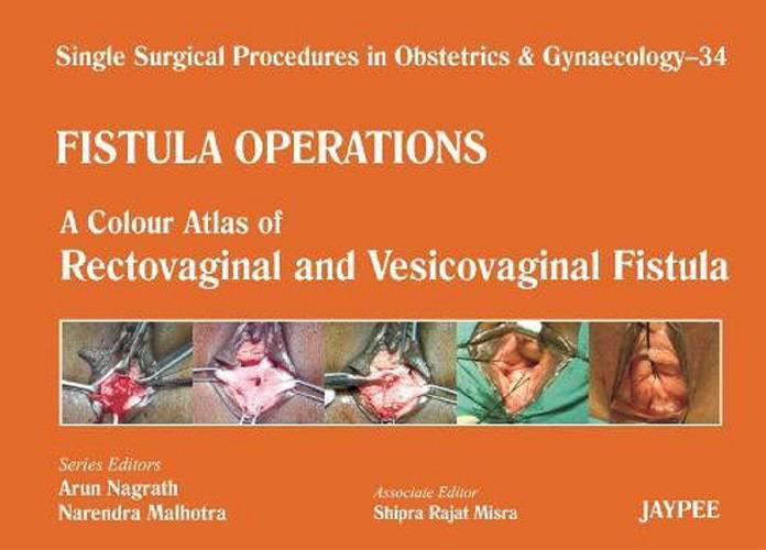 A Colour Atlas of Rectovaginal and Vesicovaginal Fistula